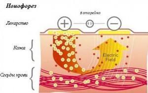 Ионофорез кожи специальная процедура, фото