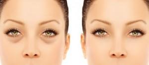 Убрать темные круги вокруг глаз, различные компрессы под глазами
