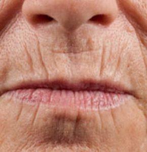 Появление морщин на верхней губе женщины, очищая клетки кожи