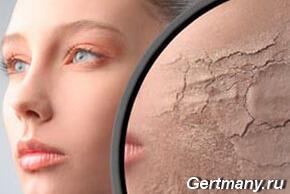 Причины сухой кожи