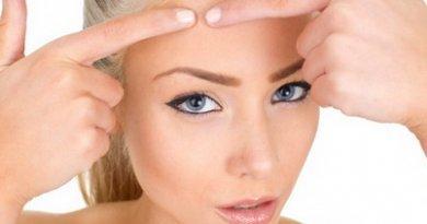 Как можно избавиться от прыщей на коже лица, маски, настойки