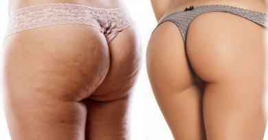 Эффективная борьба с целлюлитом у женщин в домашних условиях