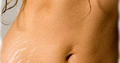 Как убрать растяжки на теле и груди, домашние процедуры удаления