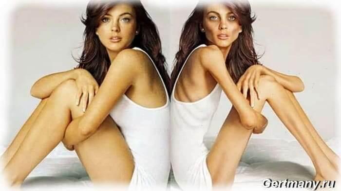 Cтремление худобы - анорексия, подражание известным моделям